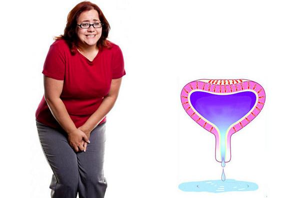 ощущение полного мочевого пузыря после мочеиспускания у женщины