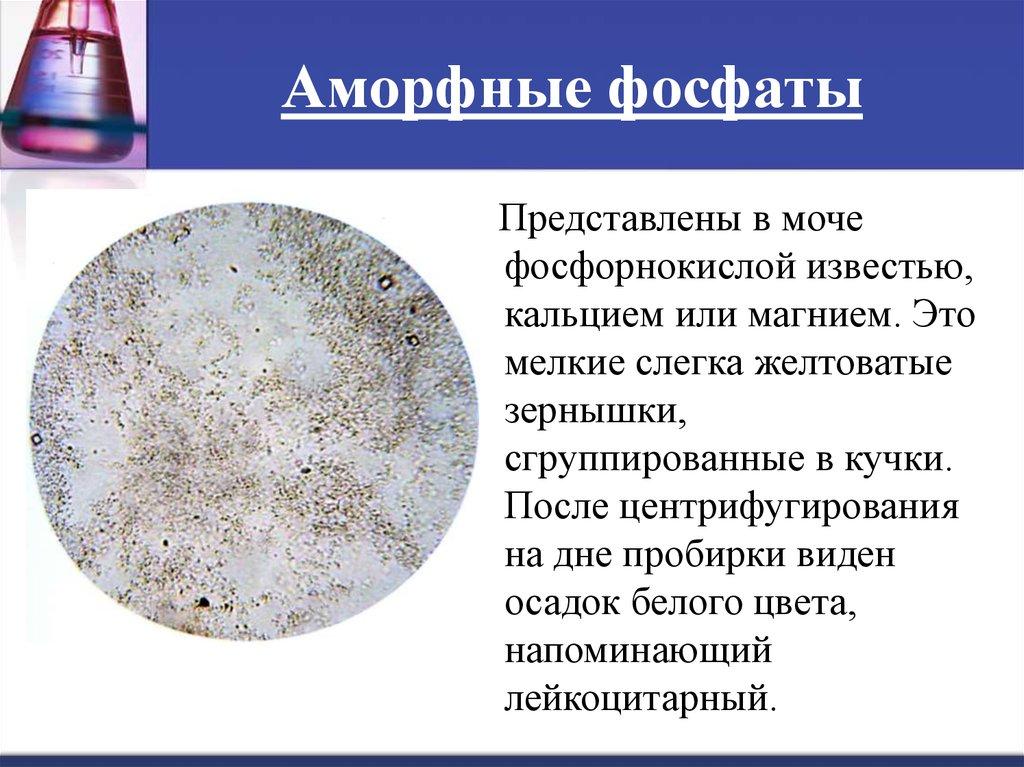 Аморфные фосфаты в моче