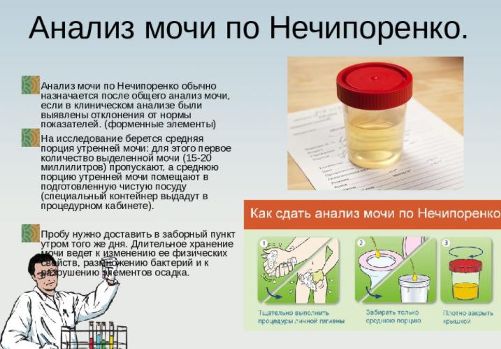 исследование по Нечипоренко