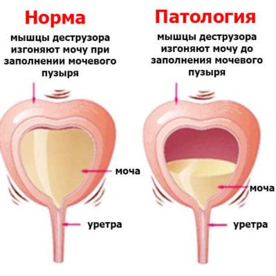 синдром раздраженного мочевого пузыря на схеме