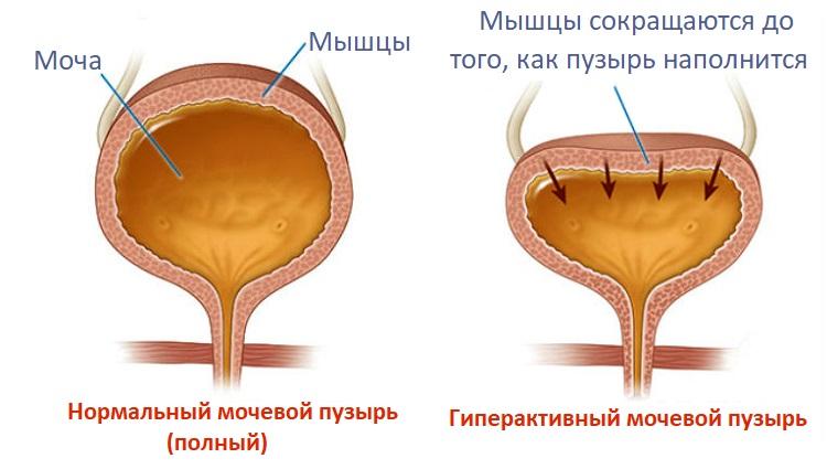 Гиперактивный мочевой пузыря