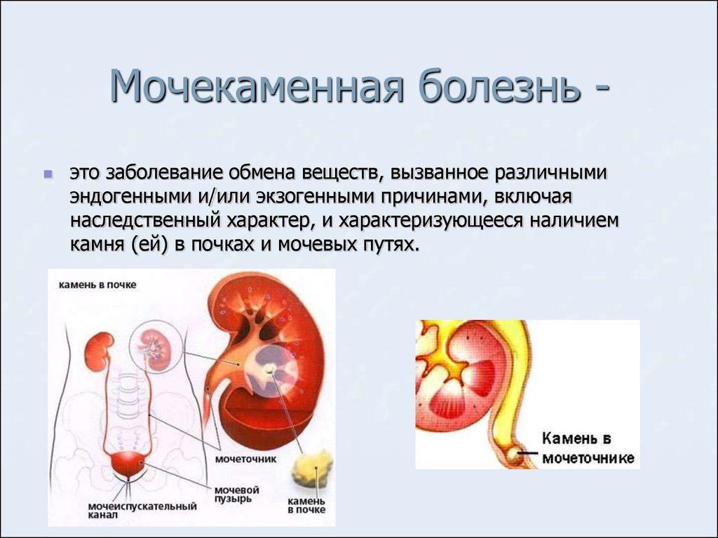 мочекаменной болезнь