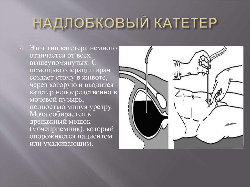 надлобковый катетер