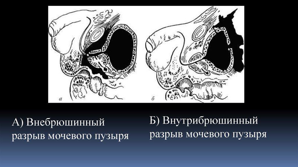 Классификация повреждений мочевого пузыря