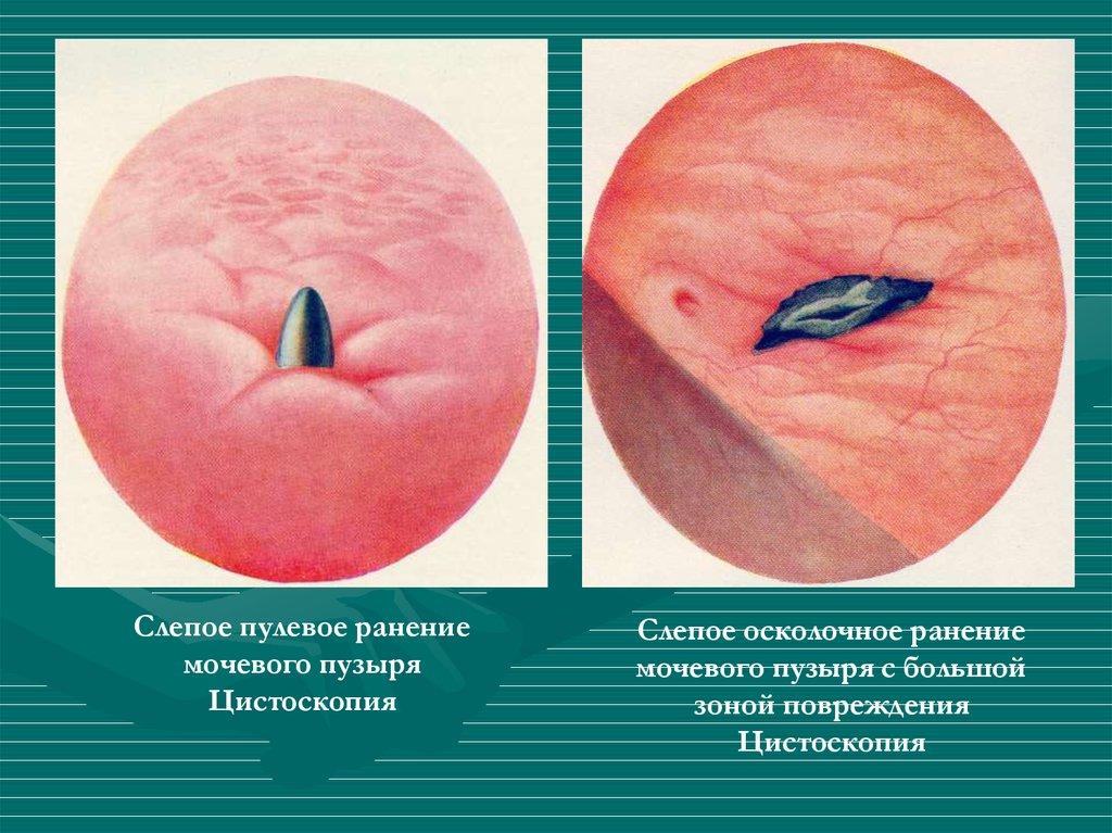 ранение пулей и осколком мочевого пузыря