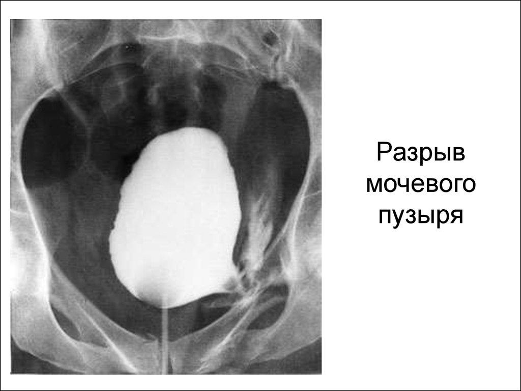 Разрыв мочевого пузыря на рентгене