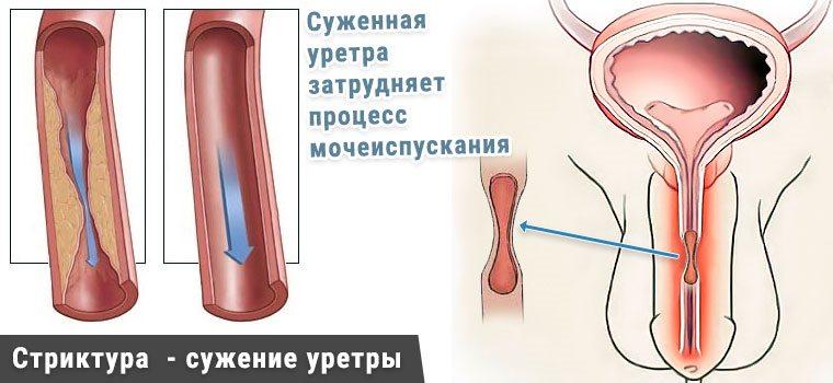 структура уретры