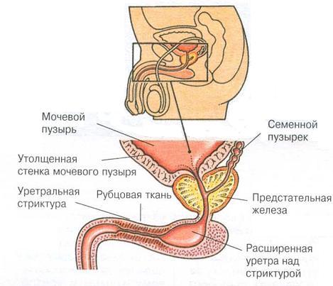 сужение в области уретры