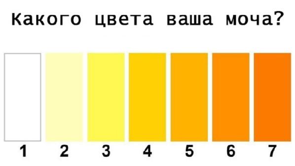 какого цвета ваша моча