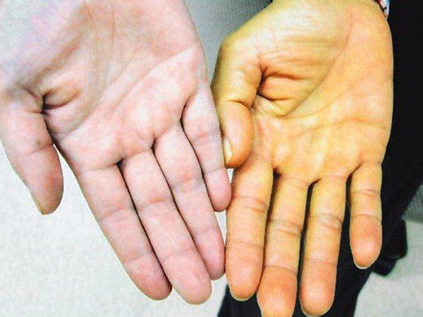 желтизна кожи рук