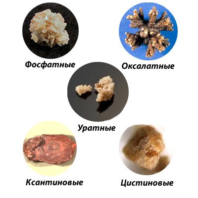камни в почках классификация