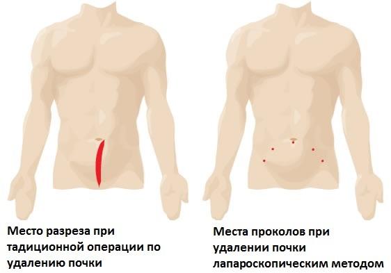 Виды нефрэктомии