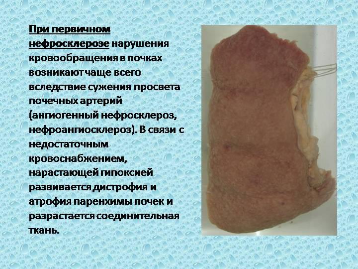 первичный нефросклероз