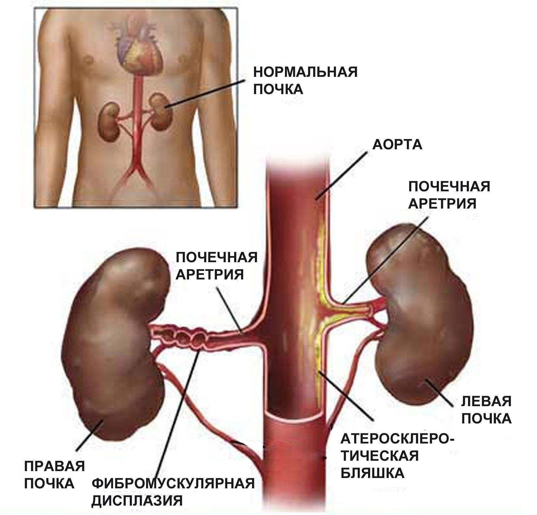 закупорка почечной артерии
