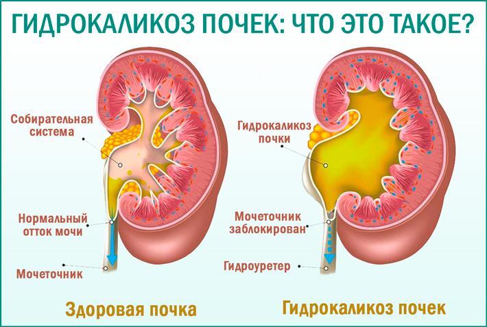 что такое гидрокаликоз