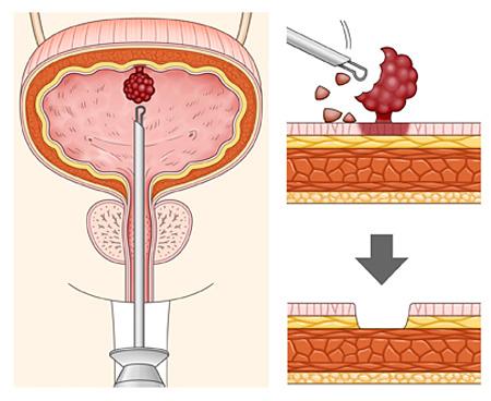 удаление рака мочевого пузыря