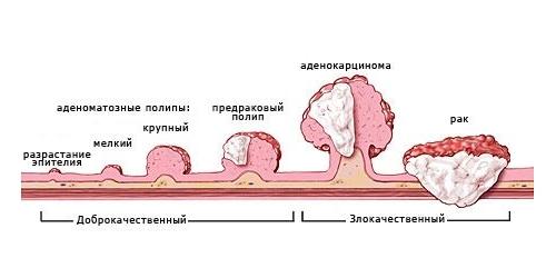 виды полипов