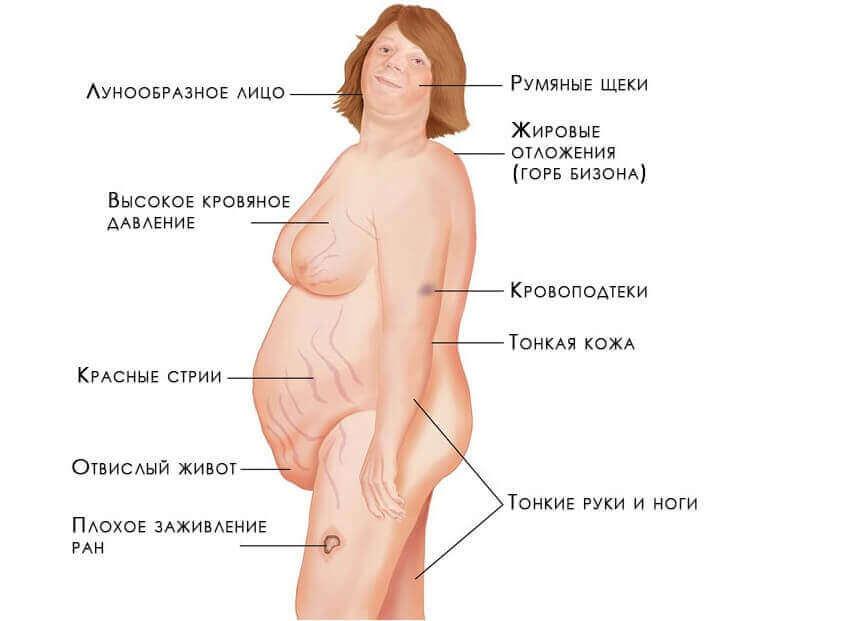 симптомы опухоли надпочечников
