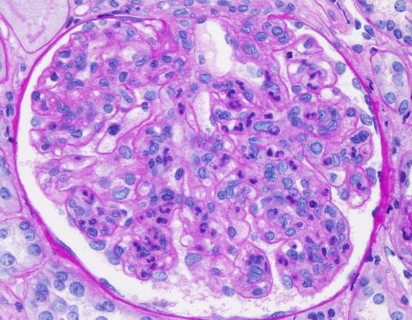 клетки почки