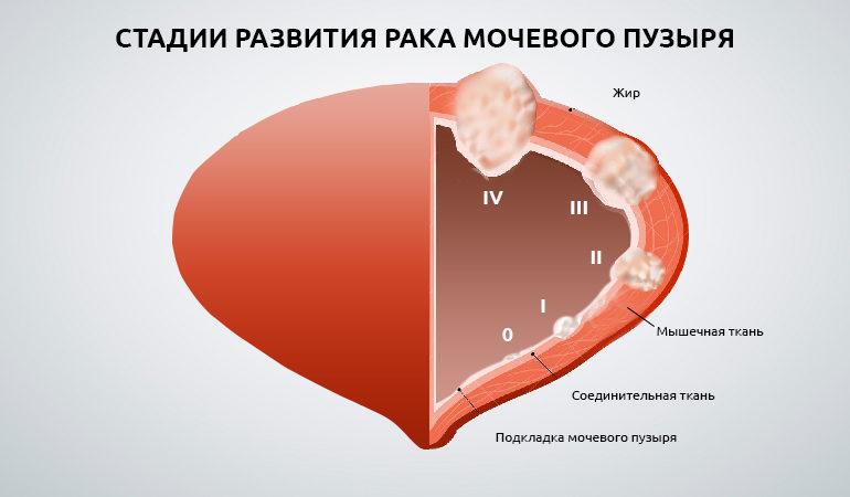 стадии развития рака мочевого пузыря
