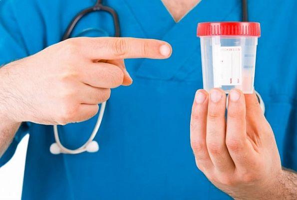 доктор держит контейнер для мочи