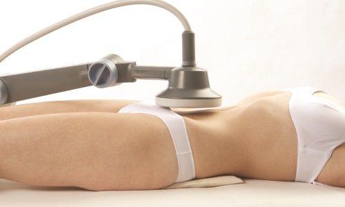 физиотерапия при цистите