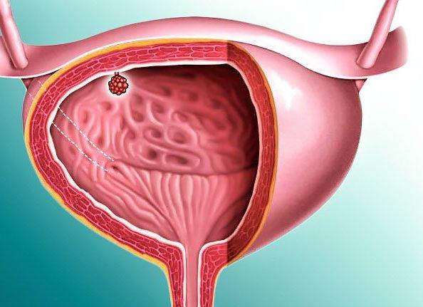 папиллома мочевого пузыря