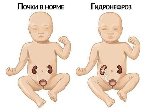 гидронефроз почки у детей