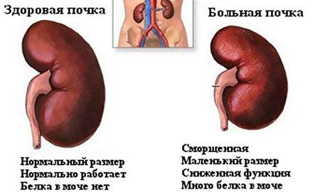 болезнь Печень Берже