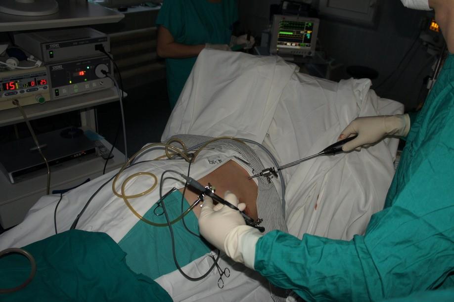 Методика проведения нефропексии
