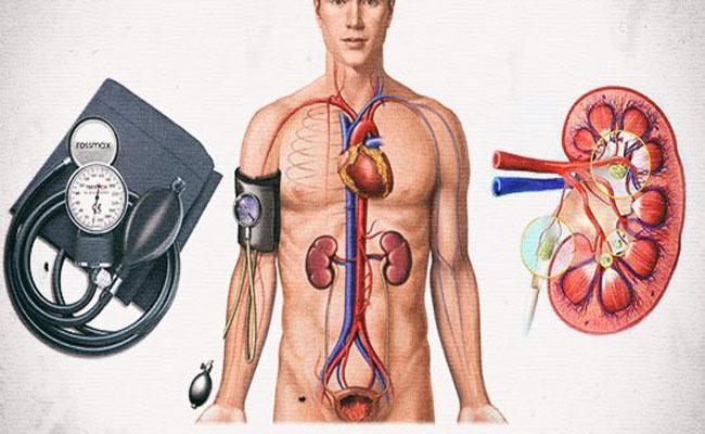 Стеноз артерий почек