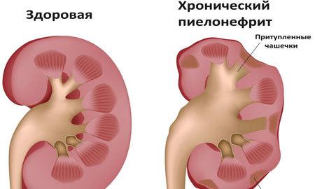 болезнь Пиелонефрит Берже