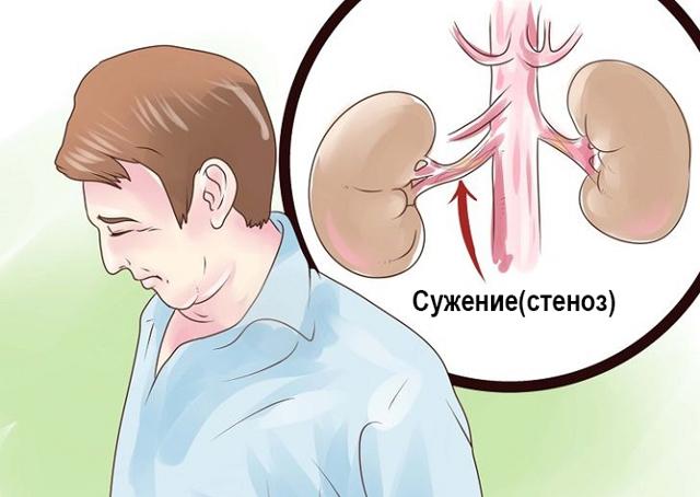 Как проявляется стеноз артерий почек человека: методы диагностики и подходы к лечению